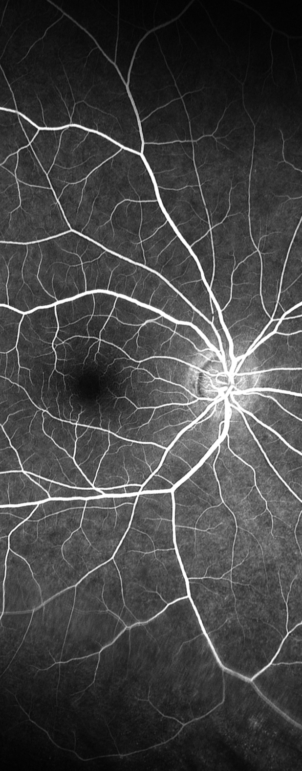 A fluorescein angiography image showing blood flow in the retina of the right eye.